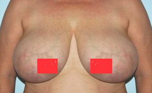 Breasts reduction before after pics